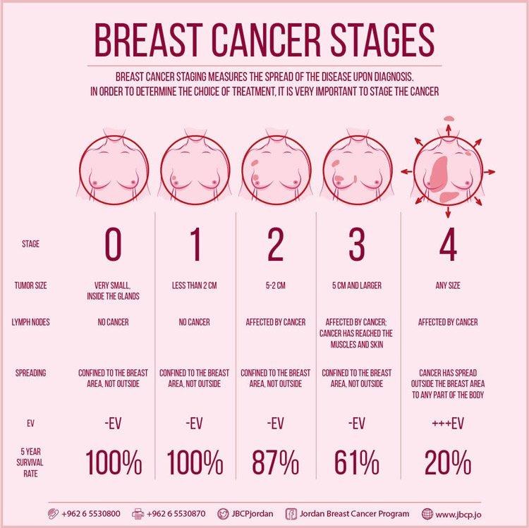 Staging-of-breast-cancer.jpg.4ffc28efaee2716113ce3d26806f8916.jpg